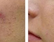 Micropeel-Microdermabration-214x169