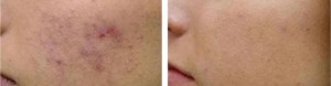 Micropeel & Microdermabration