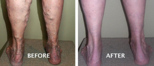 Sclerotherapy-Houston