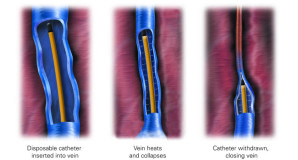rsz_09_venefit_procedure_3_step_illustration-298x160